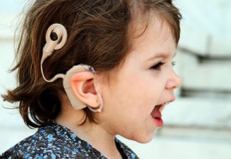 Child with anchored hearing aids